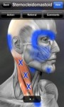 Classic SCM trigger points (the