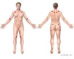 Fibromyalgia tender points map from ADAM.com