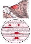 Trigger point - NOT a fibromyalgia tender point!
